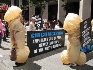circumcision-amputates