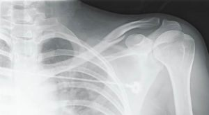 Clavicle (Collarbone) Nondisplaced fracture (NOT MY XRAY)